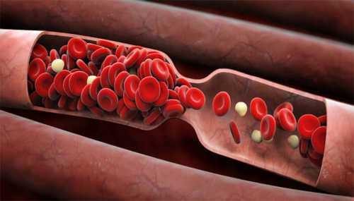 обильные менструации: попробуй средство из крапивы